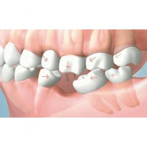 Aceleración del movimiento dentario