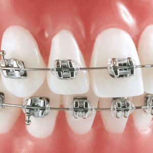 Ortodoncia fija