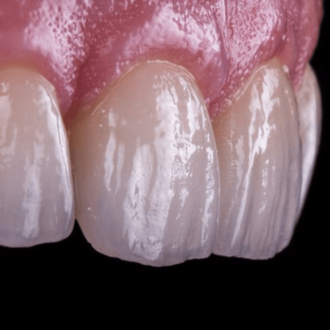 Remodelado dental y gingival